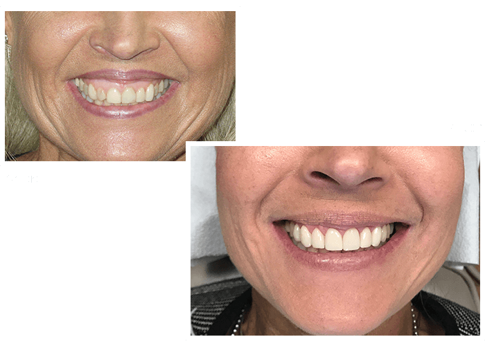 Before and after a patient visited our dentists in Woburn