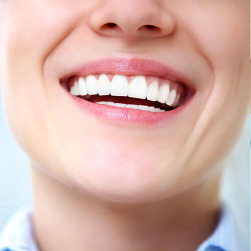 Beautifully white teeth after receiving teeth whitening services
