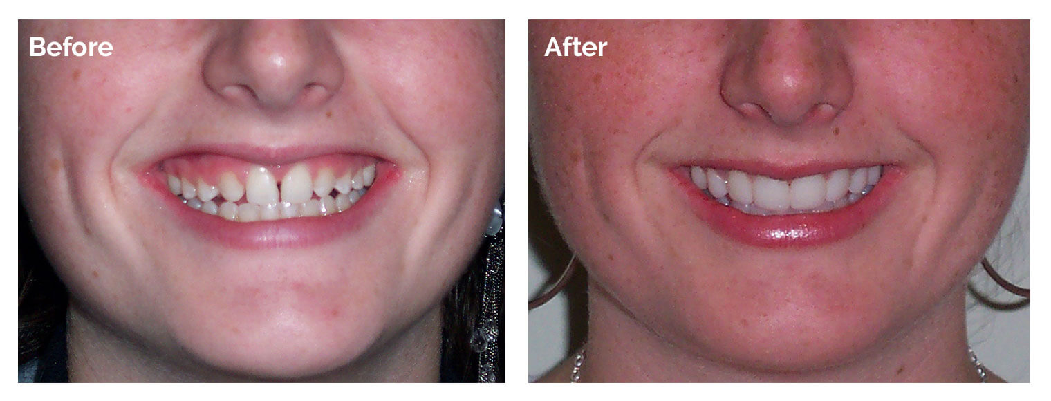Woburn Smile Gallery case two, before and after photos of teeth