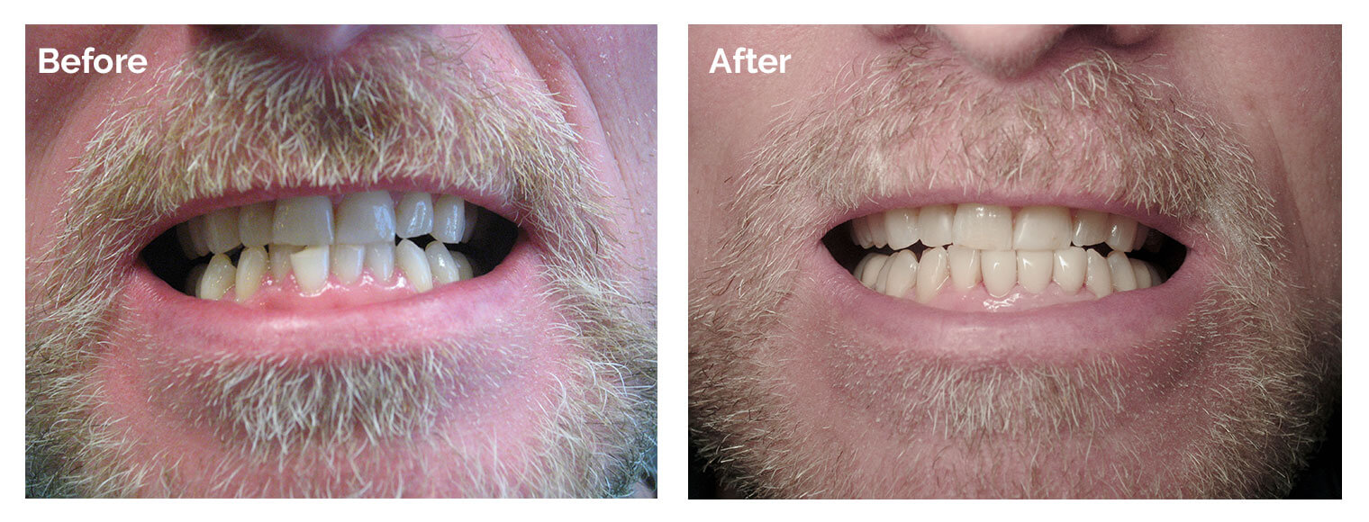 Before and after photo of a patient's teeth for our Woburn Smile Gallery